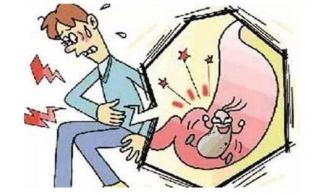 胆结石与胃癌的关系